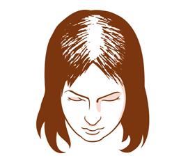 Hormonell Und Erblich Bedingter Haarausfall Haarausfall Bei Frauen